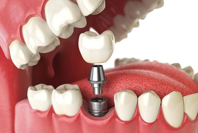 El servicio lo ofrece el Máster de Cirugía Bucal e Implantología.