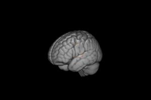 Diferencias encontradas entre afectados y no afectados por el TEA, proyectadas sobre un modelo de cerebro 3D.