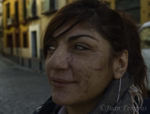 Una mujer herida por su ex pareja.