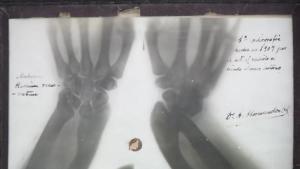 Primera placa de la Facultad de Medicina. Hasta mediados de 1907 la Facultad de Medicina no dispuso de aparato de Rayos X. En esta exposición se ven las manos del primer radiólogo que hubo en este centro, Dr. Antonio Hernández Ortiz. El original se conserva en la Real Academia de Medicina de Andalucía Oriental.