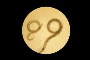 Vista al microscopio del gusano Aspiculuris, un parásito intestinal, presente en ratones, similar a los oxiuros humanos.
